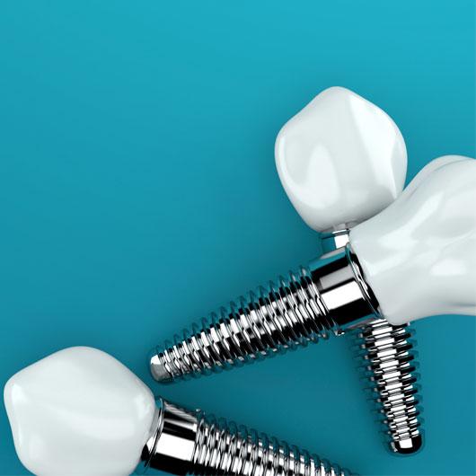 dental implants on isolated background
