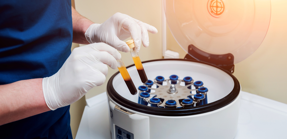 dentist preparing platelet rich plasma