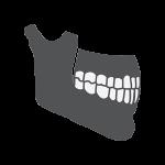 weak jawbone